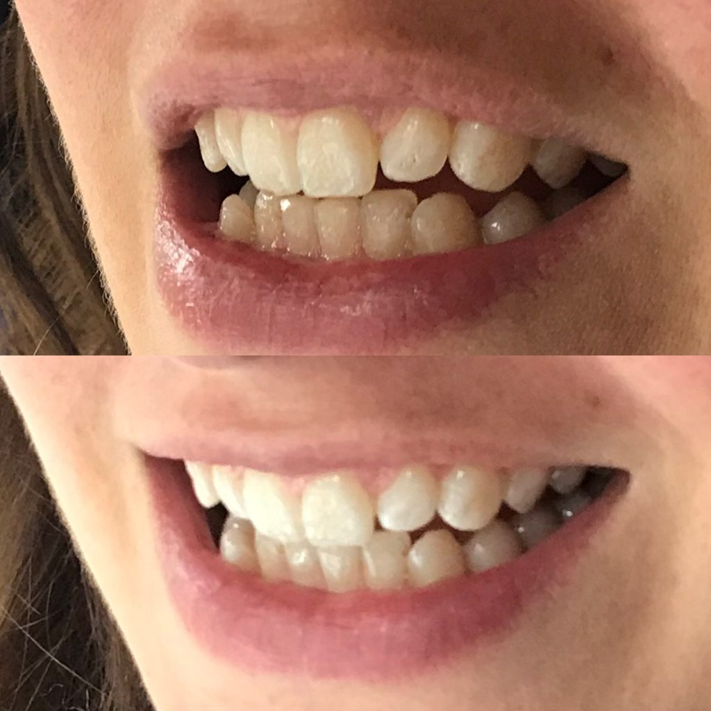 Pro Teeth Whitening Co. Charcoal Strips Review Before and After 14 Day Trial