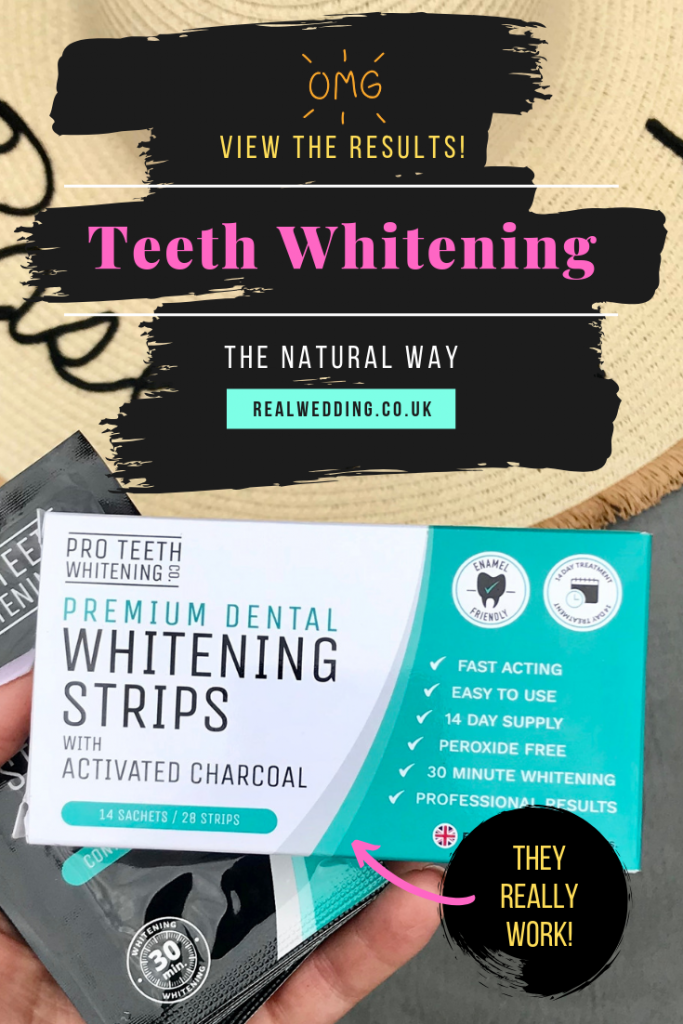 Pro teeth whitening strips review